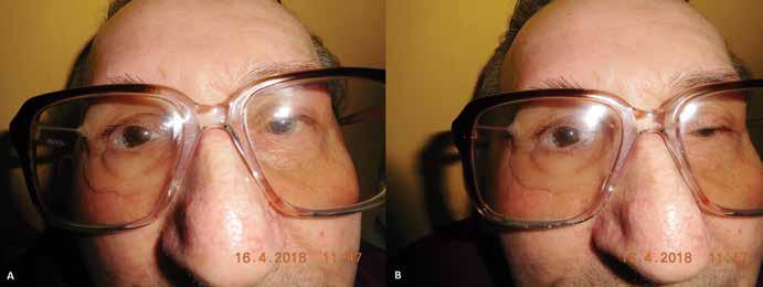 (A,B) Pacient s nasadenou epitézou v ráme okuliarov (04/2018)