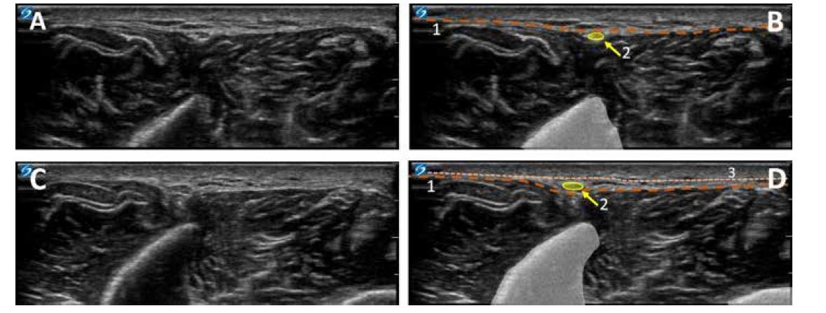 Průchod n. peroneus superficialis hlubokou fascií. Ultrazvukový obraz na rozhraní střední a dolní třetiny předního kompartmentu bérce. A. ultrazvukový obraz střední ventrální části bérce. B. kolorovaný obraz A: 1. hluboká fascie, 2. nervus peroneus superficialis. C. ultrazvukový obraz rozhraní střední a dolní třetiny bérce. D. kolorovaný obraz C: 1. hluboká fascie, 2. nervus peroneus superficialis, 3. povrchní fascie bérce