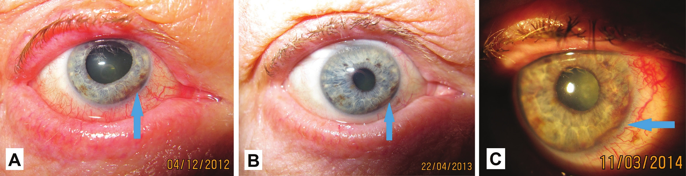 Macro photo of anterior segment of eye of patient in 2012 (A), 2013 (B) and 2014 ©