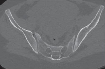 Asymetria pravého sakroilikálneho kĺbu na axiálnych CT rezoch.<br> Fig. 2. Asymmetry of the right sacroilical joint on axial CT scans.