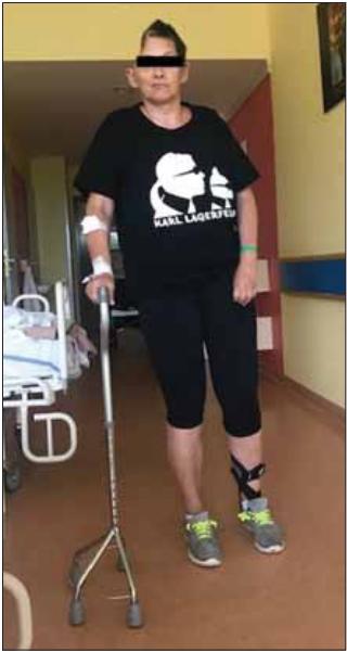 Pacientka po dekompresivní kraniektomii vpravo pro maligní hemisferální infarkt. Modifi kovaná Rankinova škála 3 – pacientka zvládá chůzi s oporou čtyřbodové berle.<br> Fig. 2. Patient after decompressive craniec tomy on the right side for malignant middle cerebral artery infarction. Modifi ed Rankin Scale 3 – the patient is able to walk with the support of a four-legged pyramid cane.