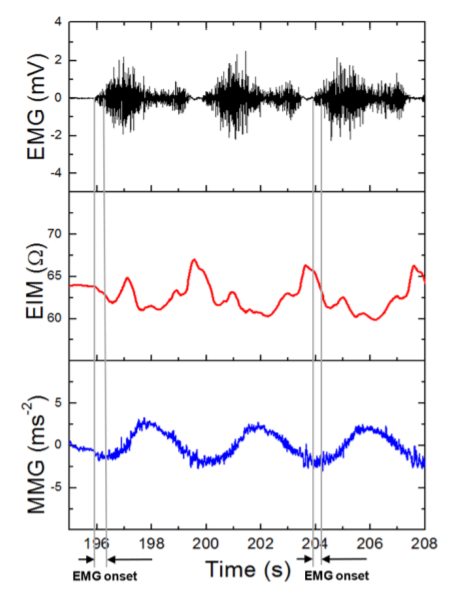 Detailed Holter EMG/EIM/MMG=f(t) signal with EMG onset = 200 ms (isotonic 50% MVC).