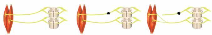 Schéma 1: Schéma nervového transferu<br> Schema 1: Diagram of nerve transfer