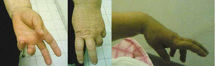 A, B – Benediction sign is a wrist position which is mimicked by ulnar paralysis; C – prominent wrist extensor weakness.<br> Obr. 1. A, B – Příznak Benediktova syndromu je poloha zápěstí, která se podobá ulnární paralýze; C – nápadná slabost extenzorů zápěstí.