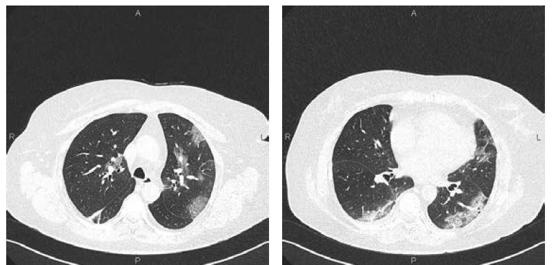 Obr. 1 a 2 CT vyšetření hrudníku u 67leté pacientky sCOVID-19 (7. den trvání obtíží): okrsky mléčného skla a retikulací vperiferii plic oboustranně