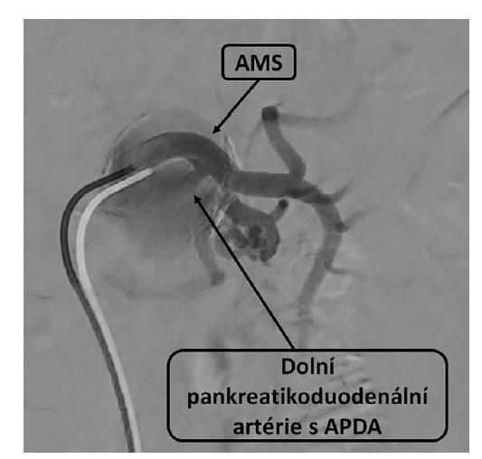 Angiografie, horní mezenterická tepna a dolní pankreatikoduodenální tepna<br> Fig. 2: Angiography, superior mesenteric artery and inferior pancreaticoduodenal artery