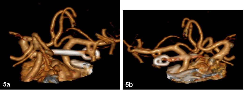 Fig. 5a–b. Postoperative CTA depicting a straight clip completely occluding the aneurysm.<br> Obr. 5a–b. Pooperační CTA potvrzující kompletní vyřazení vaku aneurysmatu.