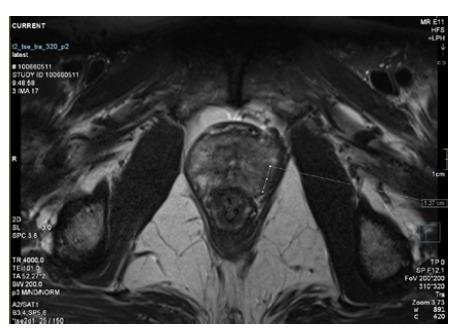3T MRI prostaty s označeným ložiskem v levém laloku<br> Fig. 1. 3T MRI of the prostate with tumour in the left lobe