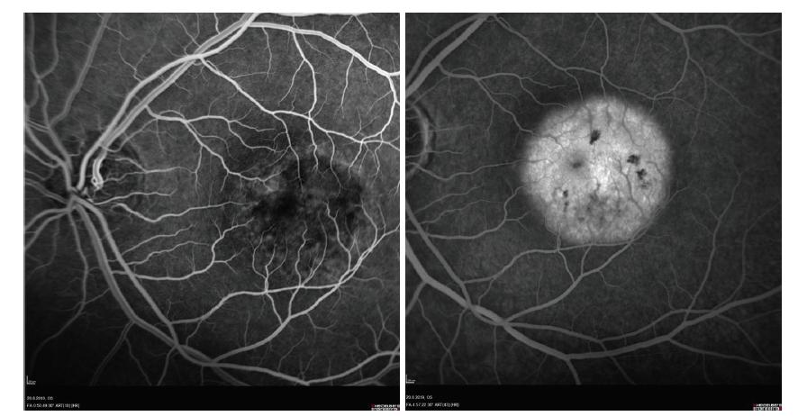 Časná (A) a pozdní fáze (B) fluorescenční angiografie pacienta s chorioretinitidou