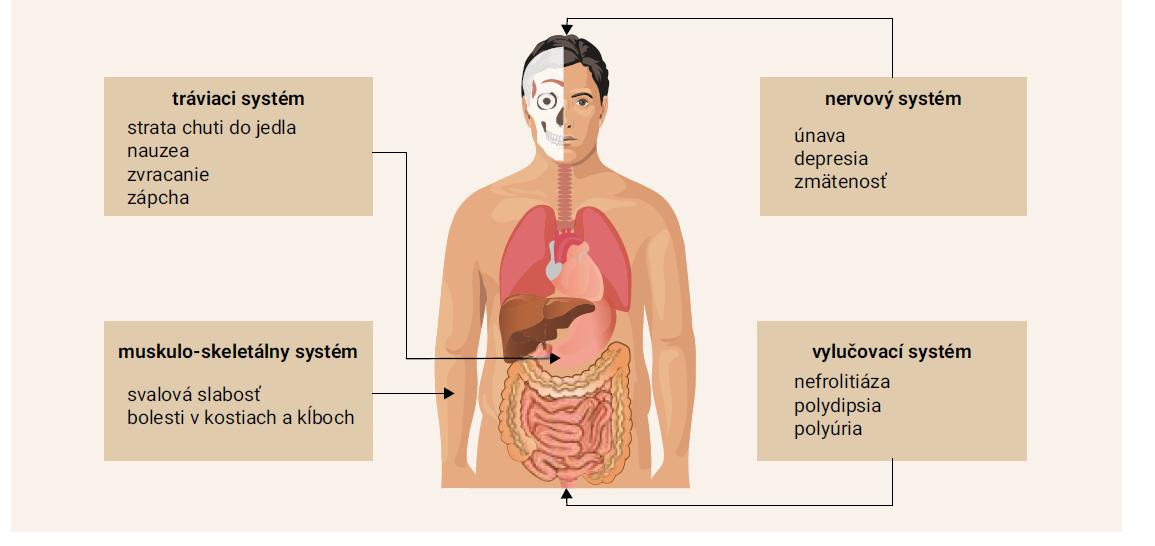 Schéma | Klinické príznaky hyperparatyreózy