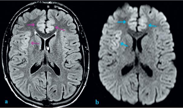 Zobrazení mozku magnetickou rezonancí: FLAIR (Fluid-attenuated inversion recovery) a DWI (difuzně vážená sekvence).<br> a) FLAIR sekvence s nálezem mírného rozšíření a zvýšeného signálu kortexu oboustranně frontomediálně a inzulárně vpravo (fialové šipky);<br> b) DWI se známkami restrikce difuze inzulárně vpravo a frontomediálně oboustranně (modré šipky). Restrikce difuze může<br> být známkou cytotoxického edému v rámci neurotoxické encefalopatie.<br> Fig. 1. Brain magnetic resonance imaging: FLAIR (Fluid-attenuated inversion recovery) and DWI (Diffusion-weighted magnetic resonance imaging).<br> a) Cortical thickening and increased FLAIR signal intensity of insular cortex on the right and frontomedial cortex bilaterally (purple arrows);<br> b) Diffusion restriction involving right insular cortex and frontomedial cortex bilaterally (blue arrows). Diffusion restriction can be an indicative marker of cytotoxic edema as sign of neurotoxic encephalopathy