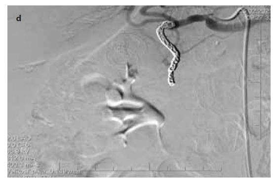 Obr. 3d) Angiograficky po sekundárnom koilingu cievy bez známok extravazácie.<br> Fig. 3d) Angiografic verification with no signs of active bleeding.