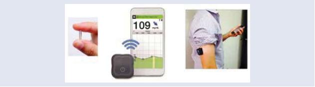 Implantovateľný glukózový sensor Eversense [13]