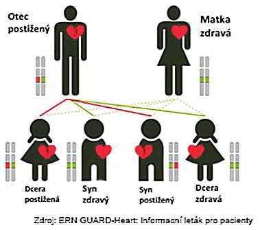 Autosomálně dominantní typ dědičnosti. Dědičná vloha se dědí s50% pravděpodobností, bez závislosti na pohlaví.