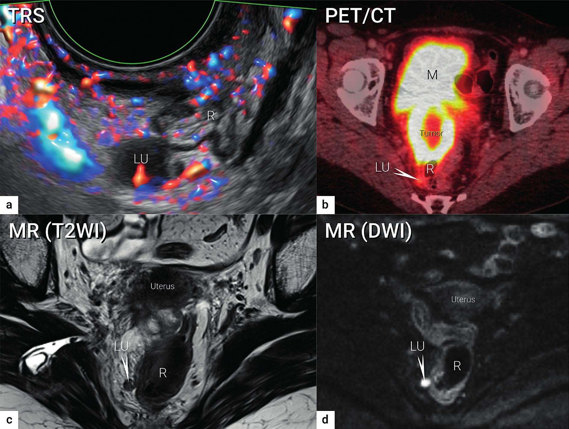 Zobrazení lymfatických uzlin<br> Viscerální metastatická lymfatická uzlina o velikosti 10 mm uložená v pravém sakrouterinním vazu podle transrektálního ultrazvuku (a), PET/CT (b), MR (T2WI)(c) a MR (DWI)(d). TRS – transrektální ultrazvuk; PET/CT – pozitronová emisní tomografie fúzovaná s CT; MR (T2WI) – magnetická rezonance s T2 váženými obrazy (T2WI, T2 weighted images); MR (DWI) – magnetická rezonance se zobrazením difuze (DWI – diffusion weighted images); LU – lymfatická uzlina (označena šipkou v b, c, d); R – rektum; M – močový měchýř