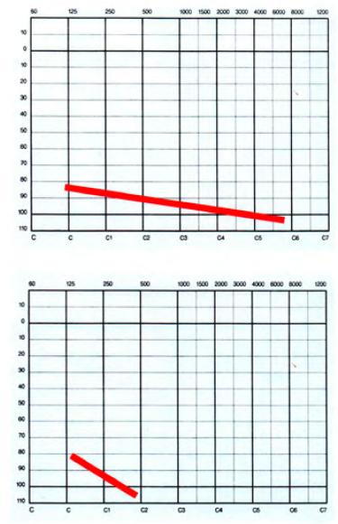 Vyšetření BERA je nepřesné ve vysokých intenzitách stimulace. Stejná BERA a prognosticky zcela odlišný stav sluchu. Pankochleární ztráta sluchu nahoře je dobře kompenzovatelná sluchadly, zatímco dolní ztrátu nelze sluchadly ovlivnit. Nutná kochleární implantace