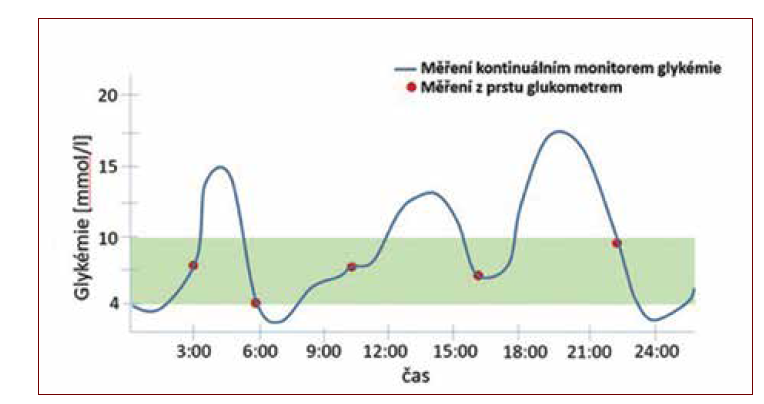 Glykemický profil zobrazený kontinuálním monitorem glykemie