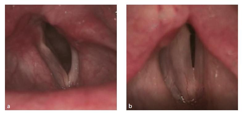 Rigidní lupenlaryngostroboskopie. Kompletní paréza levé hlasivky. V respiračním postavení levá hlasivka paramediálně (3a). Ve fonačním postavení insuficience v celé délce glottis (3b). Zdroj: Klinika otorinolaryngologie a chirurgie hlavy a krku FNHK