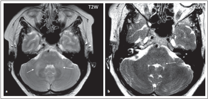 Pacient s AQP4-IgGpozNMOSD, difuzní zvýšení signálu v T2 váženém obraze v oblasti středních mozečkových pedunkulů (šipky) (a), vlevo zasahující ke IV. komoře (detailněji zobrazeno na obrázku b (šipka)), diskrétní ložiska zvýšeného signálu i v oblasti přední části pontu.<br> Fig. 2. AQP4-IgGposNMOSD patient, T2-weighted image, diff use hypersignal in cerebellar peduncles (arrows), transversal cut (a), adjacent to the fourth ventricle on the left side (for detail, see fi gure b (arrow)), discrete hypersignal lesions in ventral pons.