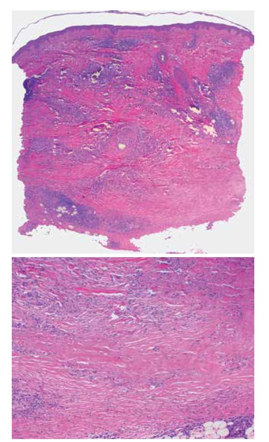 Necrobiosis lipoidica<br> a) horizontálně probíhající nekrobiotické okrsky vaziva obklopené perivaskulárním a intersticiálním zánětlivým infiltrátem (HE 25x)<br> b) nekrobiotický okrsek zrnitě se rozpadajícího vaziva (HE 100x)