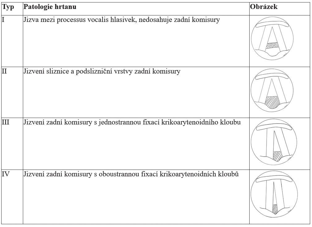 Klasifikace zadní glotické stenózy (dle Bogdasariana a Olsena).