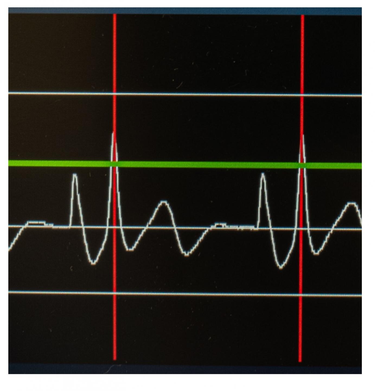 Intravazální EKG, dosažení maximální amplitudy vlny P při kavoatriální poloze konce katetru