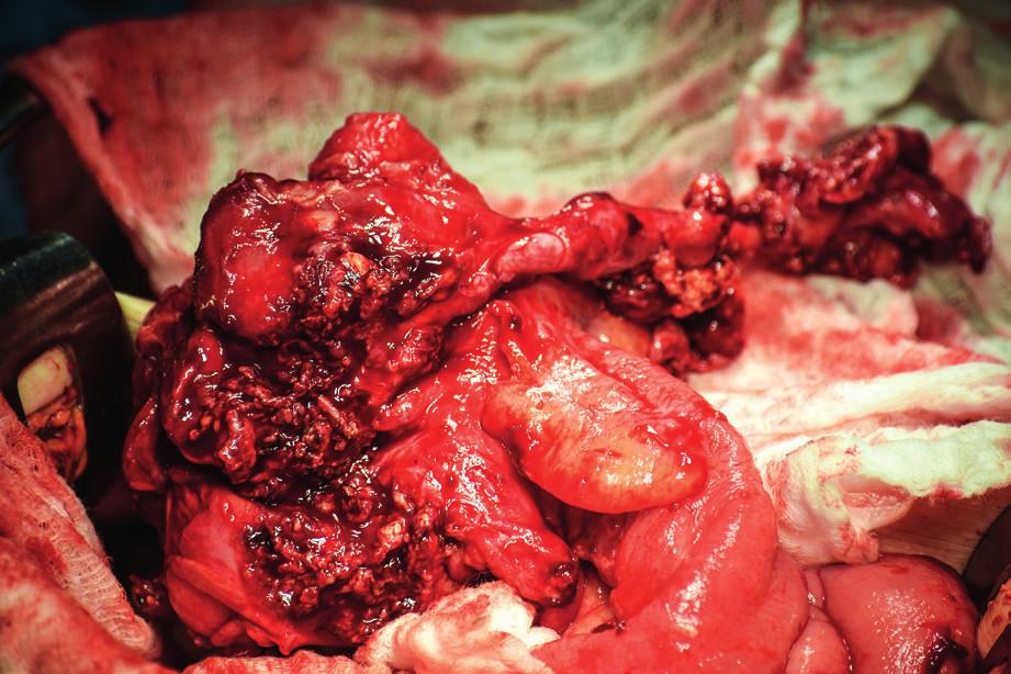 Perioperační nález