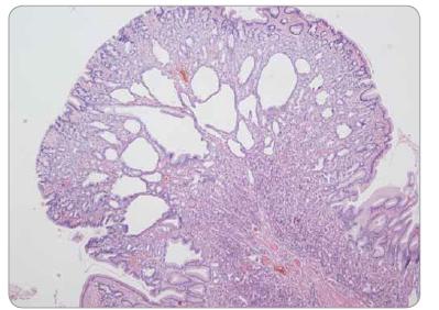 Polyp z fundických žlázek žaludku – cysticky dilatované korporální žlázky, bez epiteliální dysplazie.