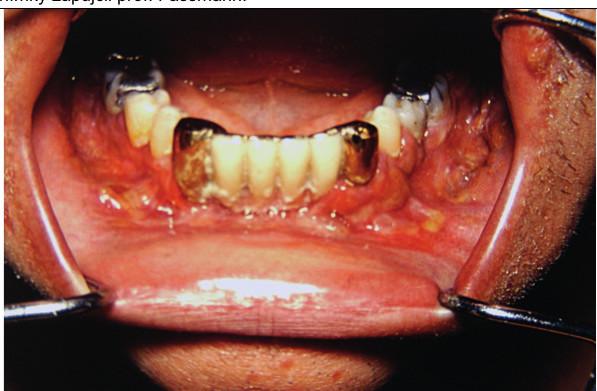 Postižení dásní LCH může způsobit proces podobný parodontóze a může vést k uvolňování zubů<br> V některých případech však postihuje i kost a vede k destrukci čelisti. Tyto snímky zapůjčil prof. Fassmann ze svého archivu.