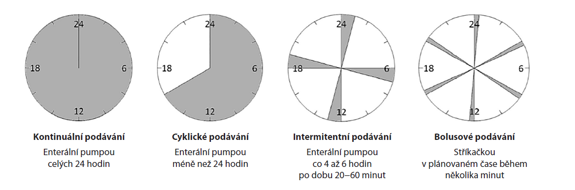 Způsoby podávání sondové enterální výživy − upraveno dle Ichimaru [14]<br> Fig. 1: Methods of delivering enteral tube feeding – adapted according to Ichimaru [14]
