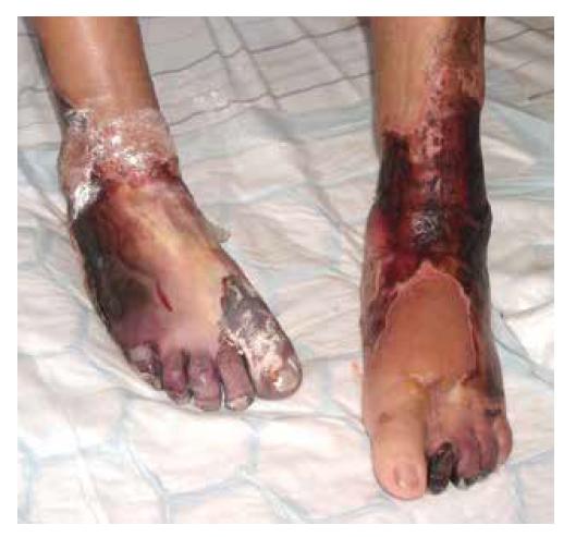 Nekrotické defekty dolních končetin u pacientky s ANCA asociovanou vaskulitidou