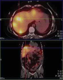 Mnohočetná ložiska záchytu  111-In pentetreotidu v játrech.<br> Fig. 5. Multiple 111-In pentetreotide  positive lesions of the liver.