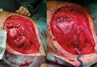 Stav po sanační mastektomii s resekcí hrudní stěny a po implantaci prolene mesh síťky<br> Fig. 3: Perioperative image showing the patient after mastectomy,chest wall resection andprolene mesh implantation