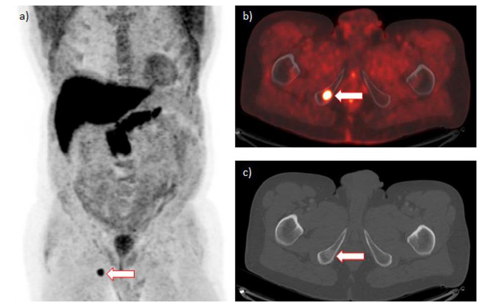 a–c. 18F-fluciklovin PET/CT s nálezem solitární metastázy v dolním raménku kosti stydké vpravo (šipka): a) maximální projekce intenzity, b) fúze pozitronové emisní tomografie/počítačové tomografie, c) počítačová tomografie (zobrazení skeletu)<br> Fig. 1. a–c. 18F-fluciclovine PET/CT positive for solitary metastasis in the inferior ramus of the right pubic bone (arrow): a) maximum intensity projection, b) positrone emission tomography/computed tomography fusion, c) computed tomography (bone window)