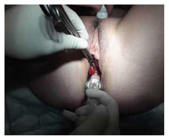 Aplikace gelu s kyselinou hyaluronovou na závěr operační hysteroskopie.<br> Fig. 1. Application of gel with hyaluronic acid at the end of hysteroscopic surgery.