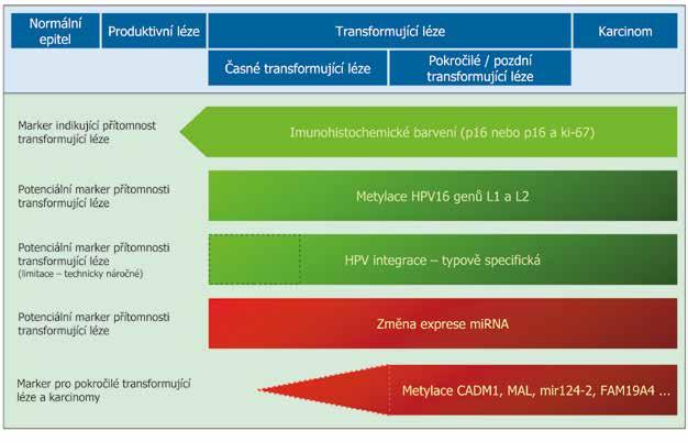 Schéma změn, které probíhají při progresi HPV indukované léze do karcinomu (změny spojené s HPV – zelená barva, změny spojené s hostitelskými buňkami – červená barva, koncept HPV indukované karcinogeneze - modrá barva). Intenzita barvy odpovídá frekvenci detekce změny, přerušovanou čarou zvýrazněna nízká nebo neznámá četnost změny. V levém sloupci je naznačena využitelnost jednotlivých změn jako biomarkerů pro skríning karcinomu děložního hrdla. Upraveno dle Steenbergen et al. 2014 (30).