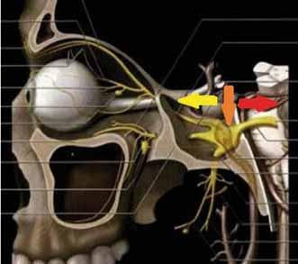 Schematické znázornenie nervus trigeminus, šípkami označená možná lokalizácia neurinómu: červená – pregangliová; oranžová – gangliová; žltá – postgangliová (upravené podľa Nijalingappa [10]).<br> Fig. 1. Schematic representation of the nervus trigeminus; possible localization of neurinoma marked by arrows: red – preganglionic; orange – ganglionic; yellow – postganglionic (edited according to Nijalingappa [10]).