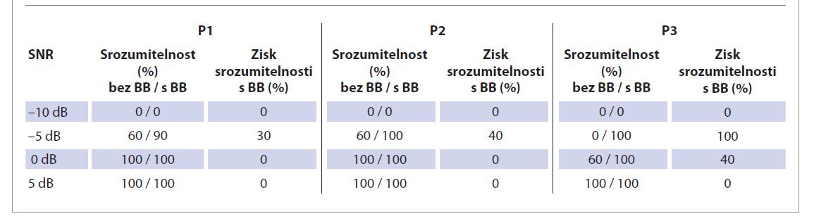 Vyhodnocení porozumění větám v hovorovém šum u jednotlivých pacientů (P1, P2, P3). Srovnání výsledků bez sluchové pomůcky a s Bonebridge. Zdroj zvuku přichází ze strany hluchého ucha.<br> Tab. 4. Evaluation of sentence comprehension in speech noise in individual patients (P1, P2, P3). Comparison of results without hearing aid and with Bonebridge. The sound comes from the deaf ear side.