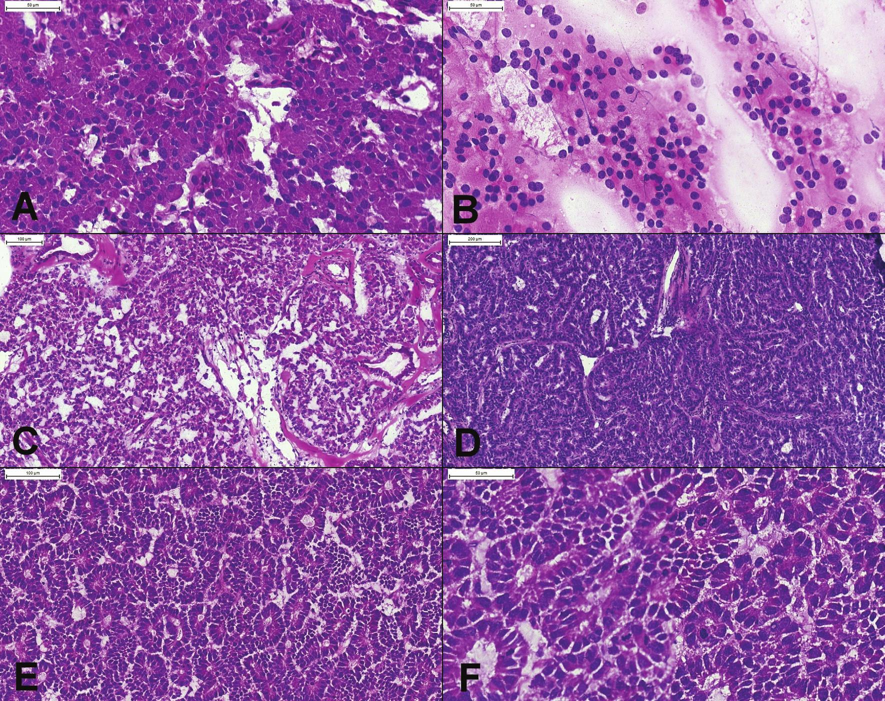 (A) Prevažne solídne rastúci dobre diferencovaný neuroendokrinný tumor, tvorený bunkami s eozinofilnou cytoplazmou, uniformnými okrúhlymi excentricky umiestnenými jadrami, bez mitóz. (B) Peroperačný cytologický náter potvrdzujúci diagnózu – diskohezívna populácia blandných plazmocytoidných buniek s blandným chromatínom, bez nápadnejších jadierok. (C, D) Pseudoglandulárne, trabekulárne a acinárne usporiadanie niektorých NET-ov môže spôsobiť diagnostické ťažkosti. Podobnú architektoniku môže mať acinárny karcinóm. (E) Acinárny karcinóm pankreasu. Tumor má difúzne acinárne usporiadanie, s bazálne lokalizovanými jadrami. (F) Výrazná mitotická aktivita (6 mitóz v jednom poli) je v dobre diferencovaných NET-och vzácna. Prominentné jadierka typické pre acinárny karcinóm v zmrazenom reze neboli dobre viditeľné.