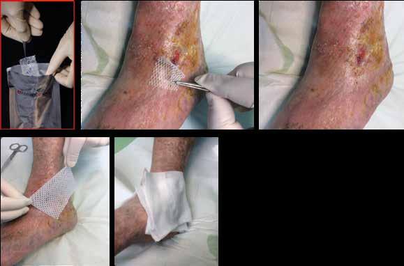 Obr. 2a | Liečba hojivou membránou Amnioderm. Naloženie membrány