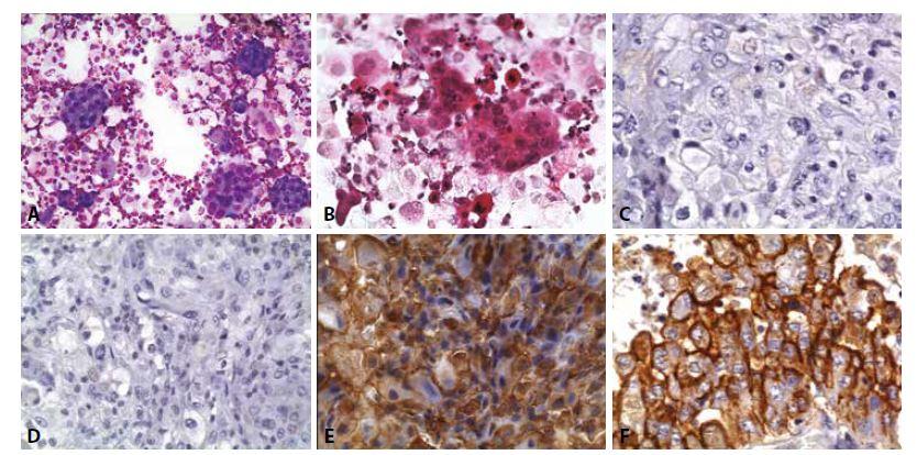 Mezoteliom: Muž, 73 let, anamnéza karcinomu prostaty léčeného prostatektomií před jedním rokem. Pleurální výpotek. Paralelně dodán bioptický vzorek z pleury.