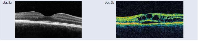 Optická koherentná tomografia. Obr. 2a | Optická koherentná tomografia normálnej makuly Obr. 2b | Optická koherentná tomografia diabetického cystoidného edému makuly. Archív autorky
