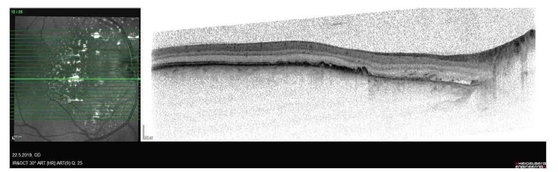 Snímek z optické koherenční tomografie pacienta po fotodynamické terapii, je patrný pokles ablace smyslového epitelu