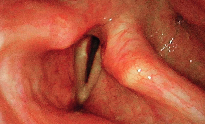 Laryngoskopický obraz před operací, oboustranně hlasivky v paramediálním postavení, zjizvení zadní komisury.