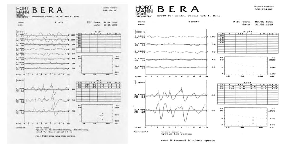 Nelze odlišit periferní a centrální postižení sluchové dráhy