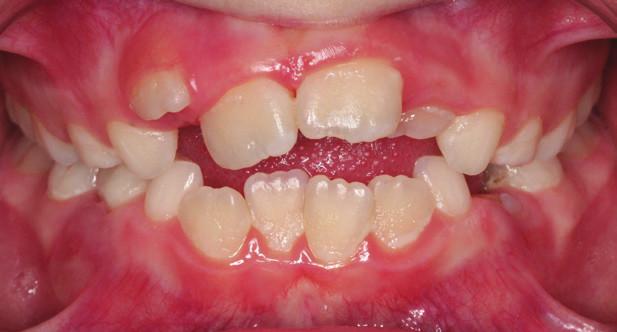 Obr. 5a Zúžená horní čelist, tendence k frontálně otevřenému skusu<br> Narrowing of the upper jaw – tendency to open bite