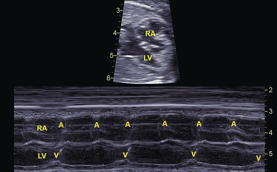 Atrioventrikulární blokáda 2. stupně typu Mobitz II zachycena pomocí Mmode. Na komory (V) se převádí pouze každý druhý stah síní (A).<br> RA – pravá síň, LV – levá komora