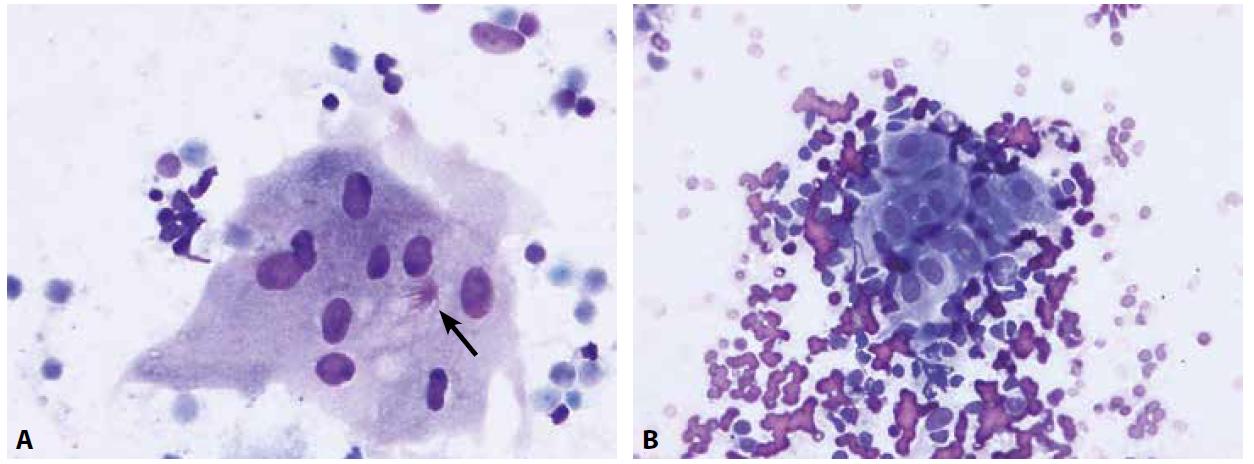 Granulomatózní proces je cytologicky charakterizovaný nálezem epiteloidních buněk a případně buněk obrovských mnohojaderných.<br> A – obrovská mnohojaderná buňka s asteroidní inkluzí (šipka) u pacienta se sarkoidózou (nátěr z EBUS-FNA nitrohrudní lymfatické uzliny, Diff-Quik®, 400x)<br> B – epiteloidní buňky, vyskytující se ve shlucích mezi buňkami uzliny, mají protáhlý tvar jader, jemný chromatin a bohatou, nezřetelně ohraničenou cytoplazmu (nátěr z EBUS-FNA lymfatické uzliny u pacienta se sarkoidózou; Diff-Quik®, 400x)