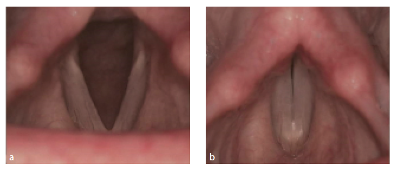 Rigidní lupenlaryngostroboskopie. Hrtan s fyziologickým nálezem, v respiračním (2a) a fonačním postavení (2b). Zdroj: Klinika otorinolaryngologie a chirurgie hlavy a krku FNHK