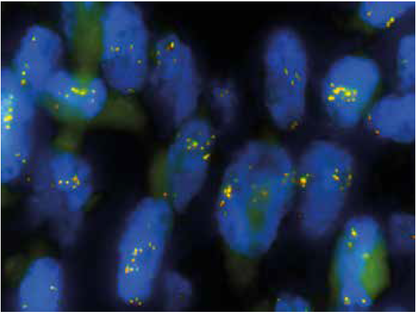 FISH analýza s PPP1CB break apart sondou (1000x). Vícečetné žluté signály v jádrech demonstrují zmnožení lokusu PPP1CB bez zjevného zlomu v této oblasti.